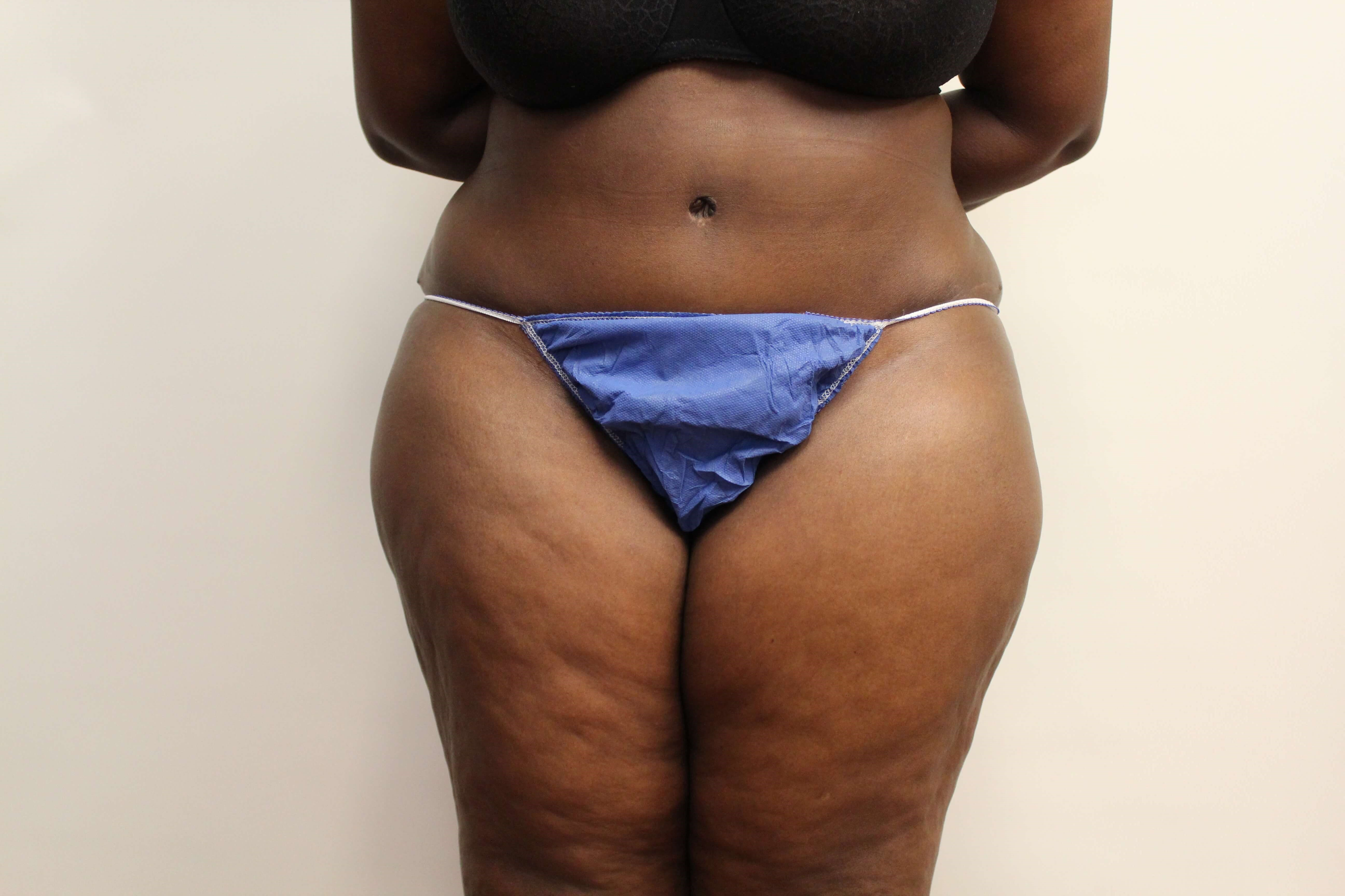 Tummy Tuck Revision Front View After
