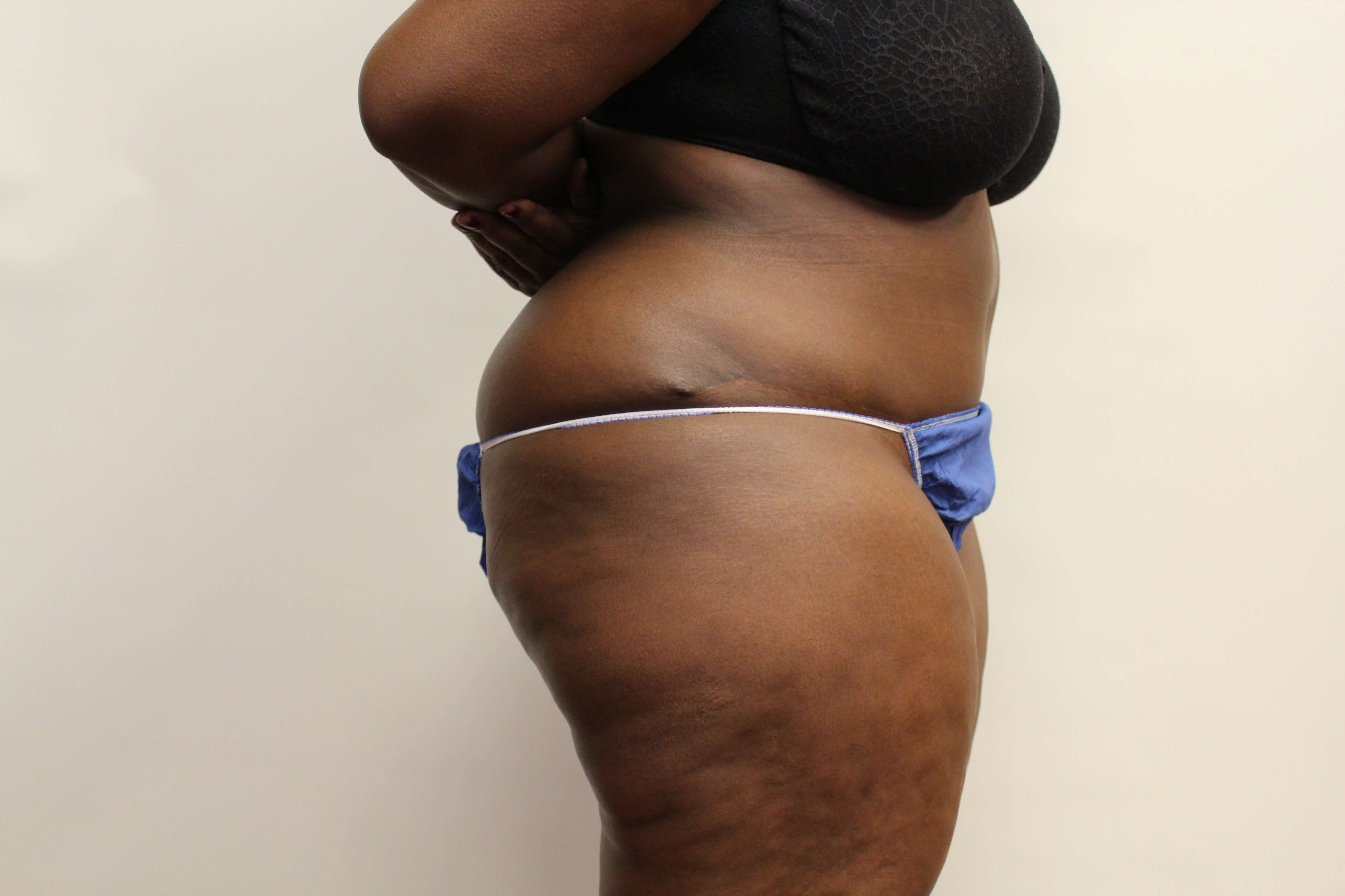 Tummy Tuck Revision Side view After