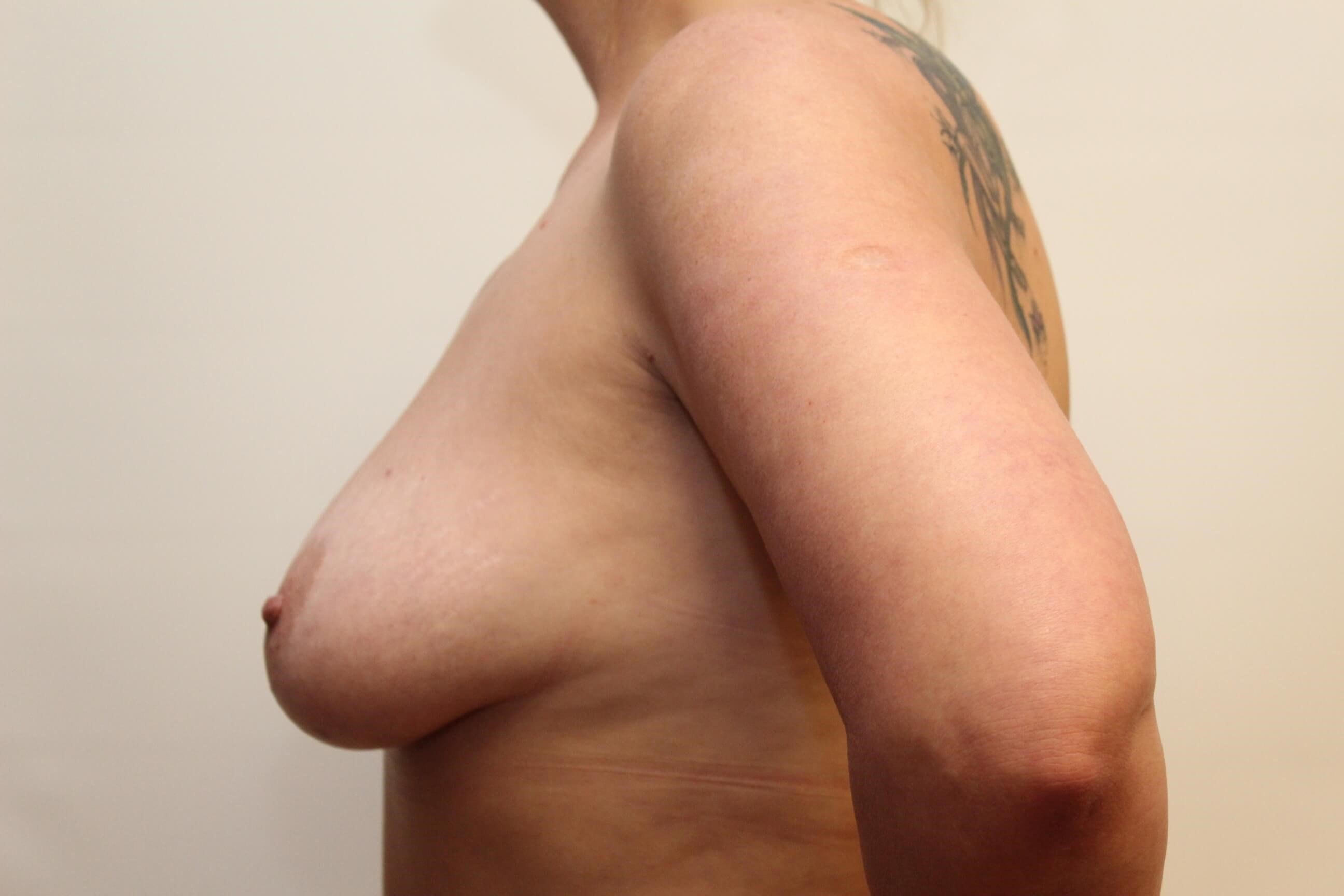Side View of Breast Before
