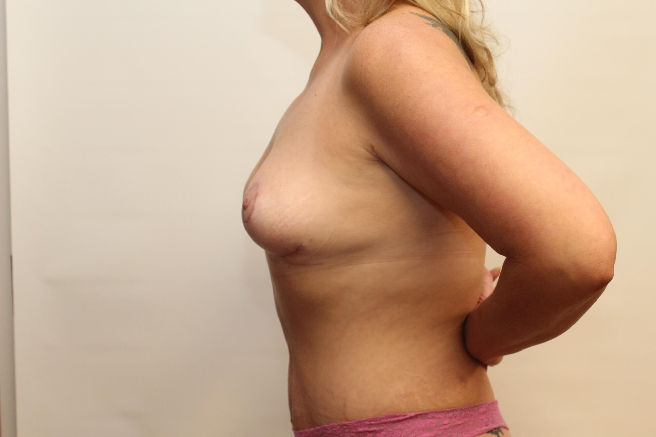 Side View of Breast After