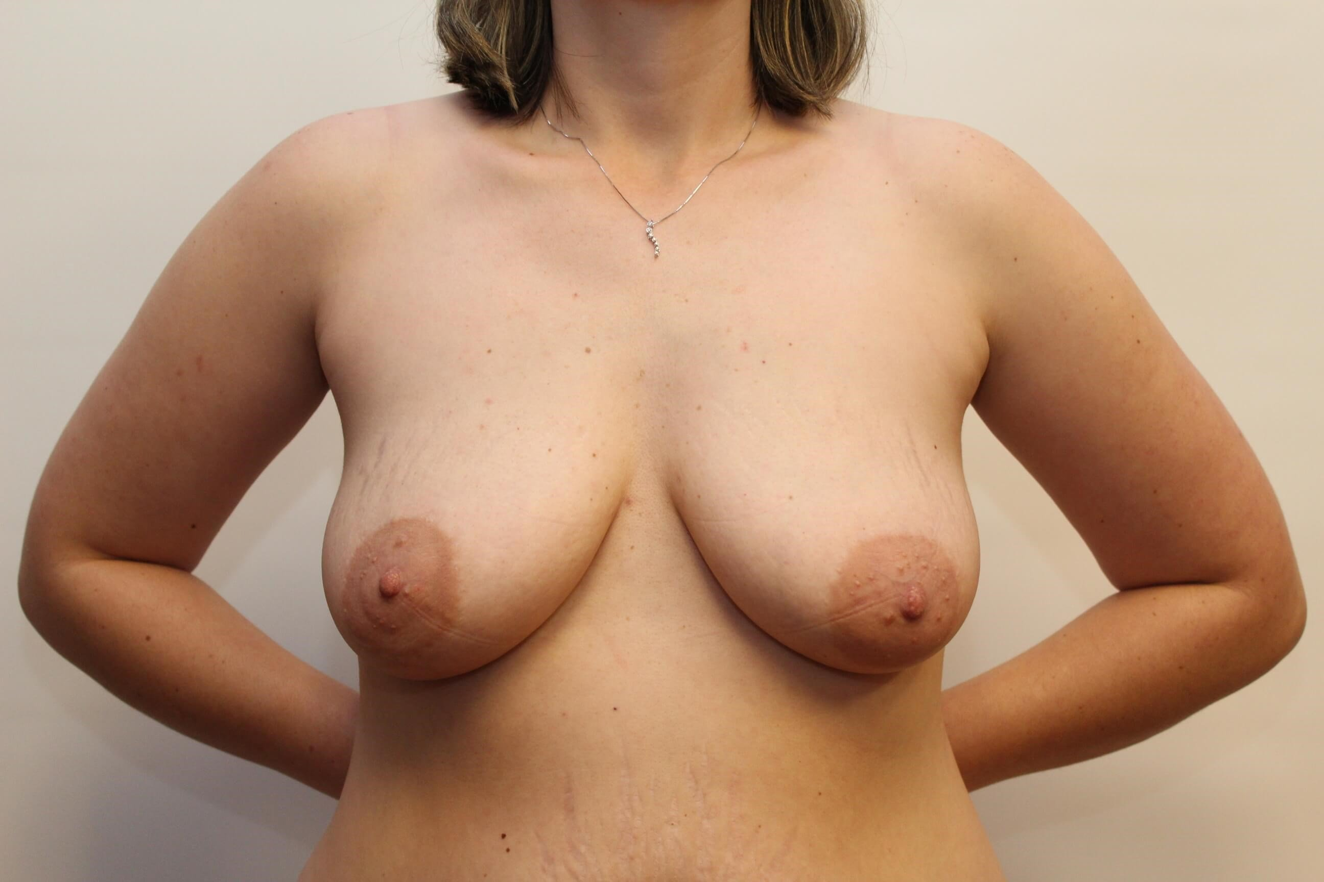 Front View of Breast Before