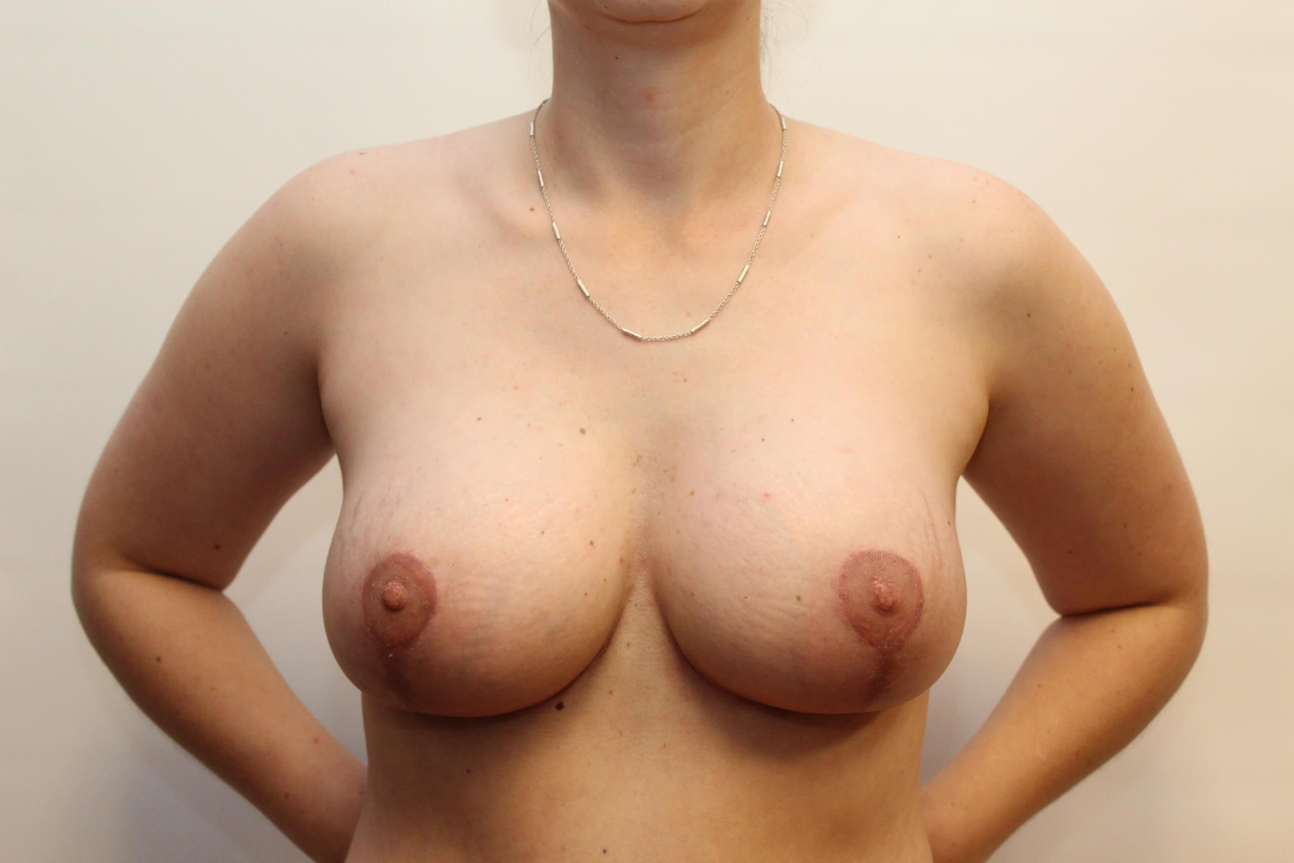 Front View of Breast After