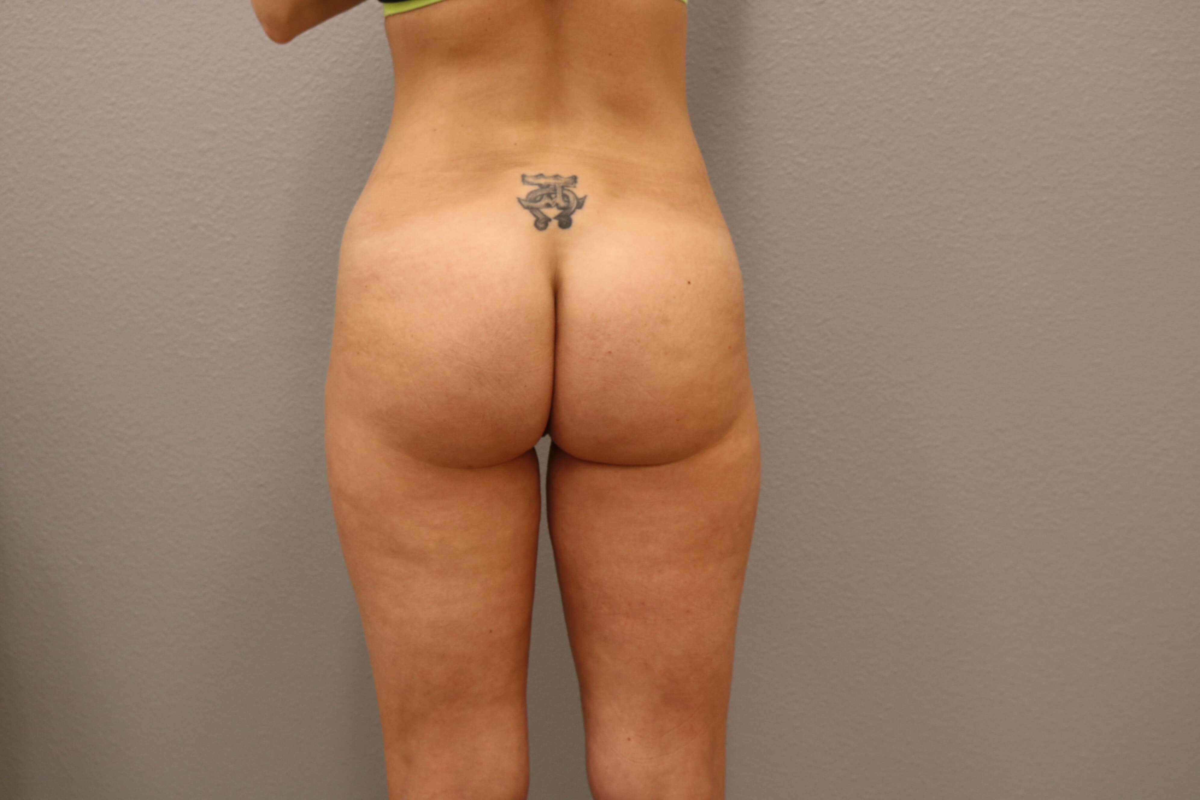 Butt Augmentation Before