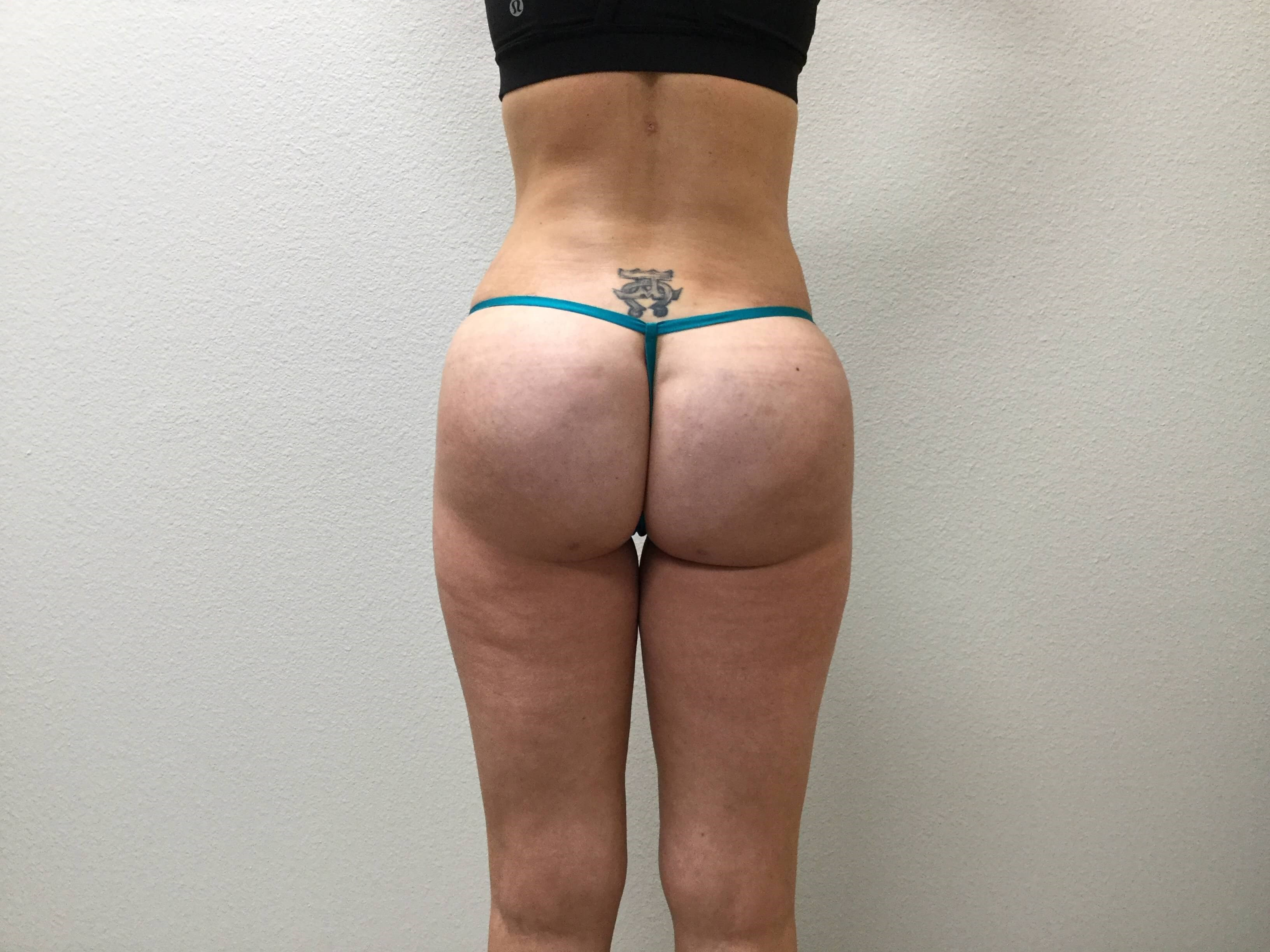 Butt Augmentation After