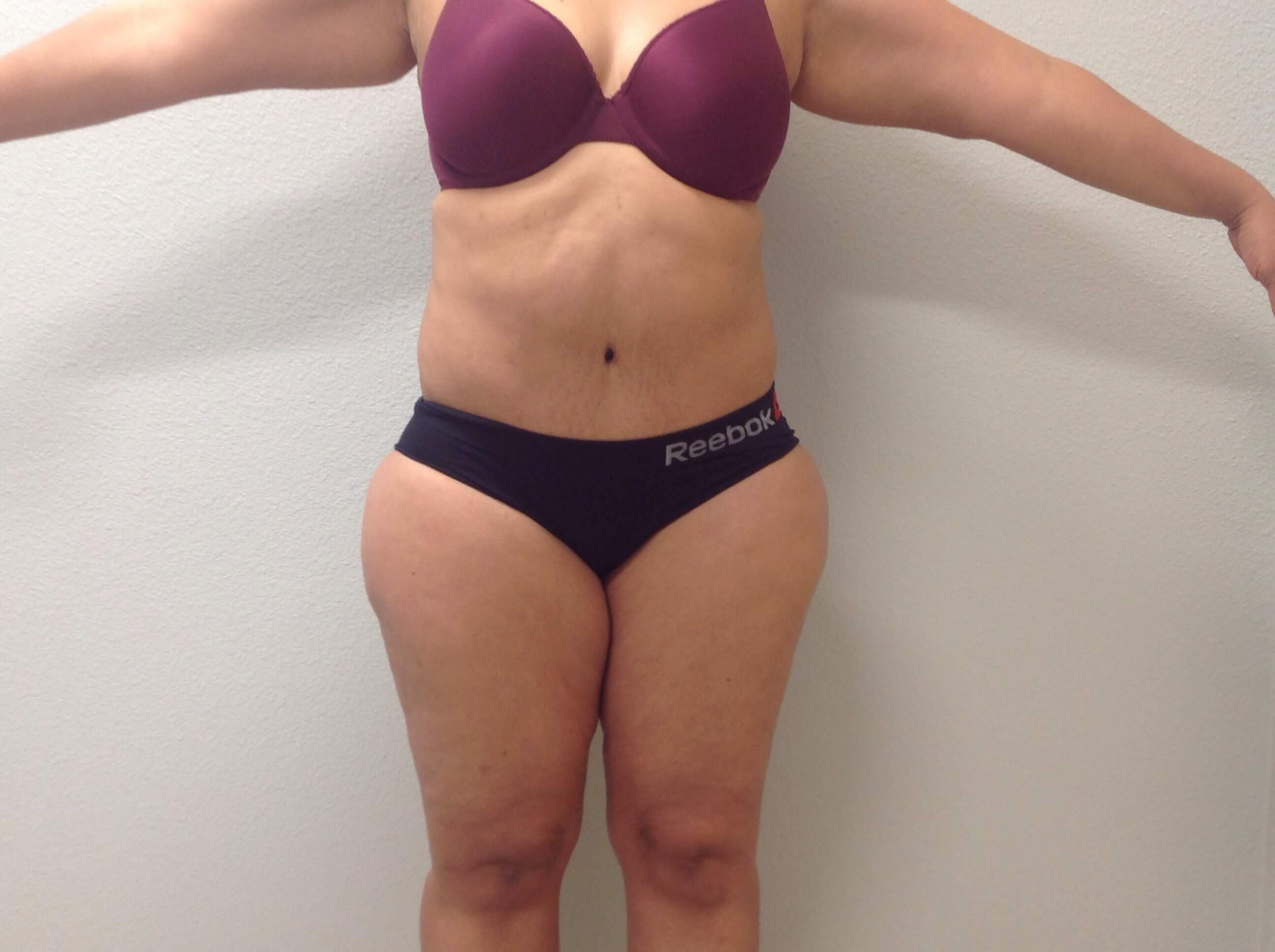 Tummy Tuck After