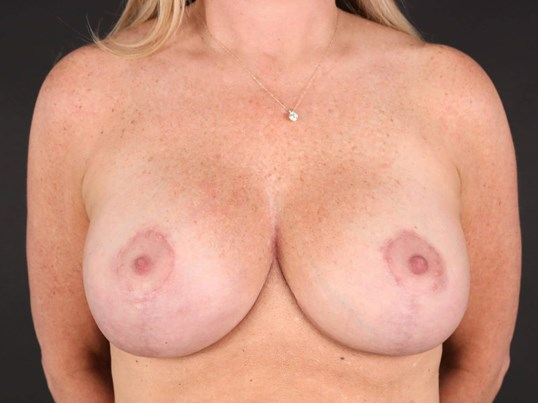 Breast Augmentation & Lift After