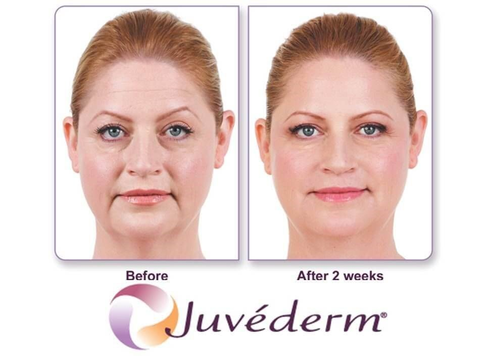 Juvederm XC Before