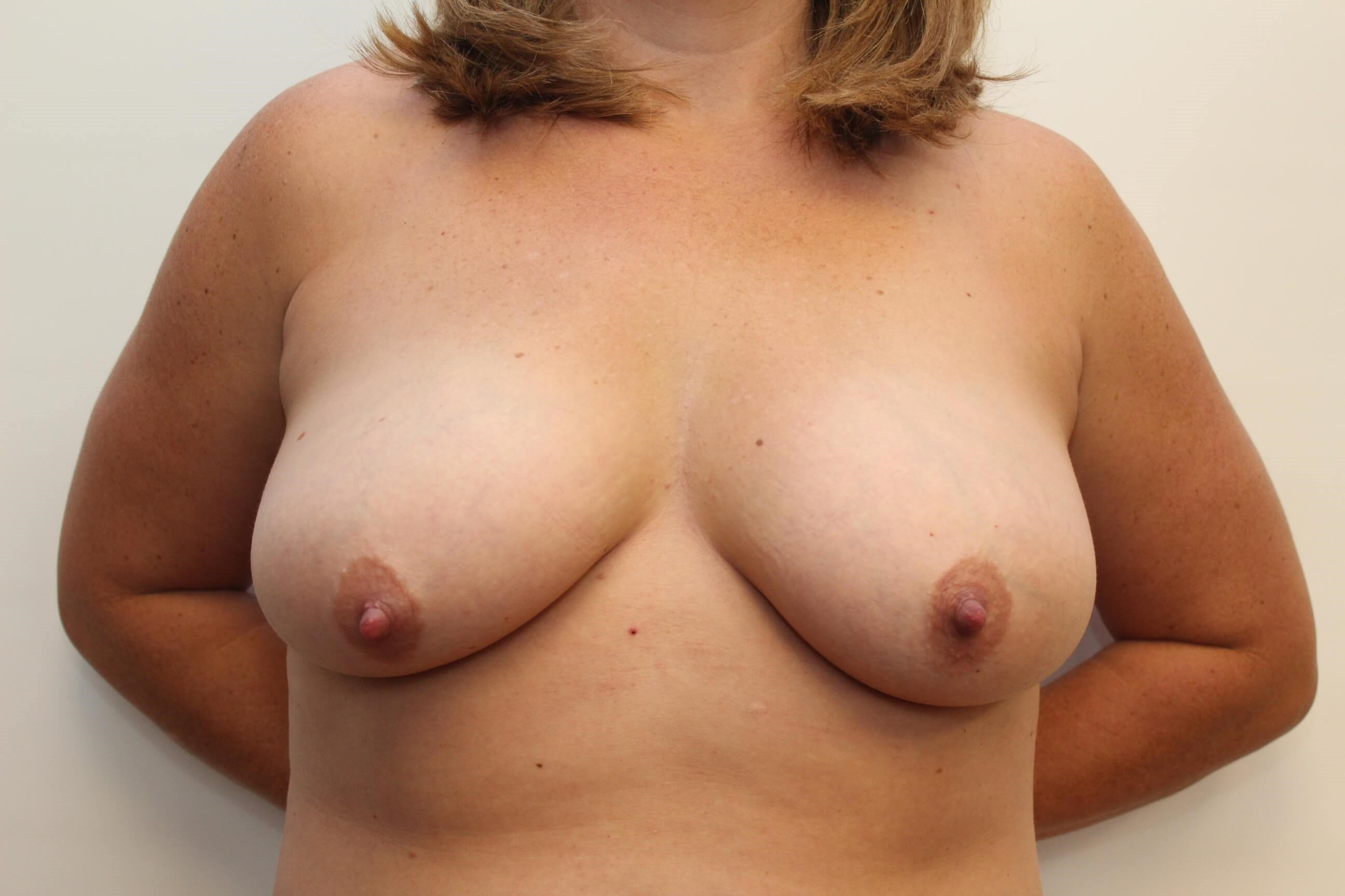 Front View Breast Before