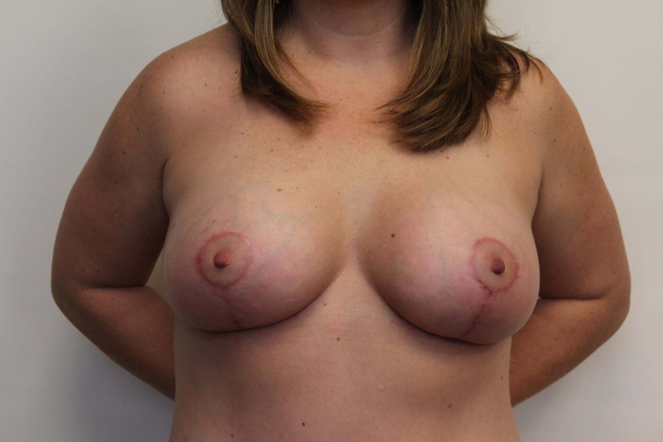 Front View Breast After