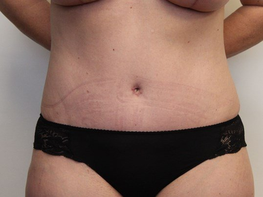 Front View Tummy Tuck After