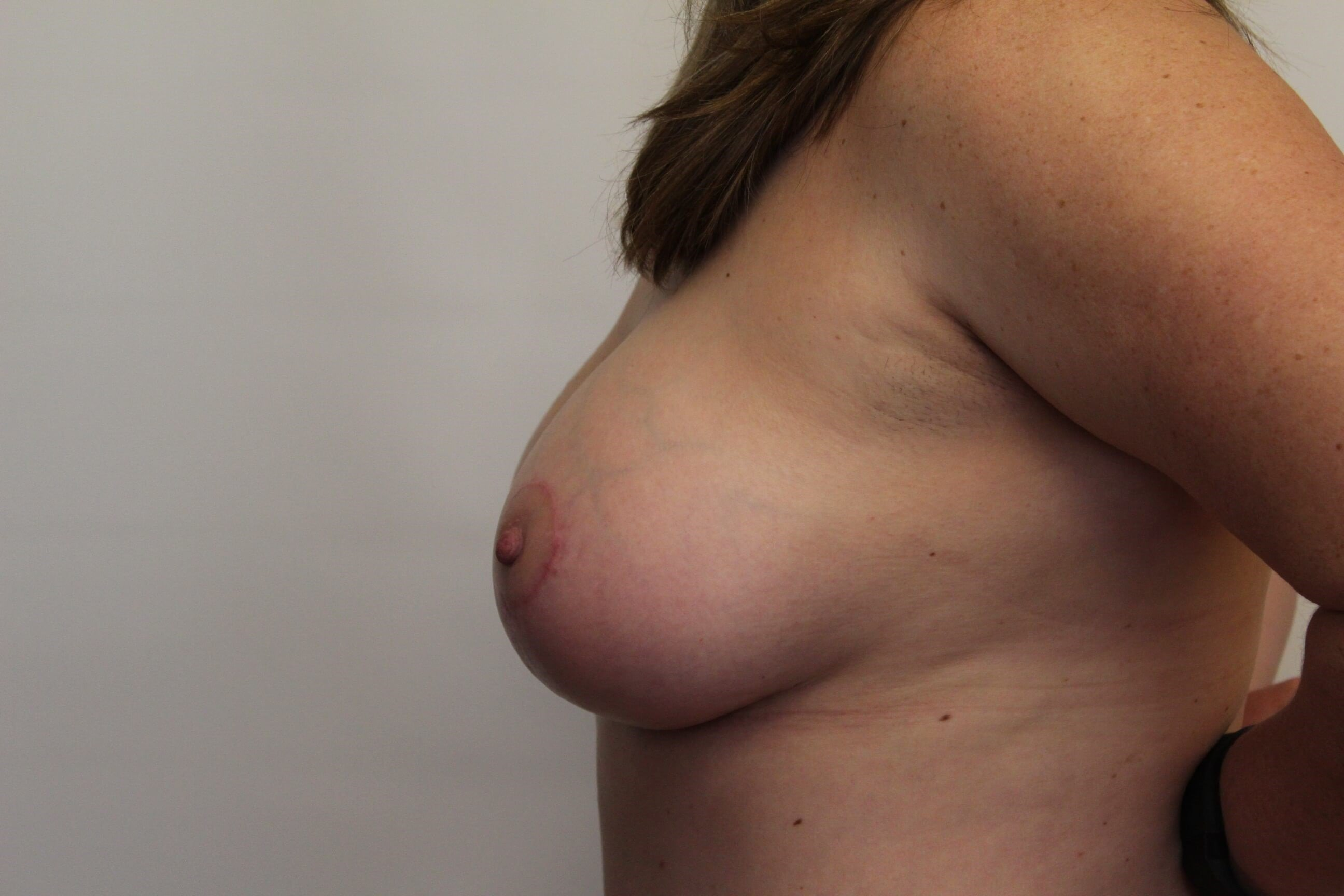 Side View Breast After